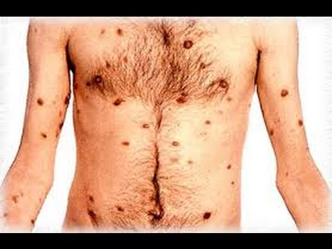 Sarcomul Kaposi - cauze, simptome și tratament - Cancer