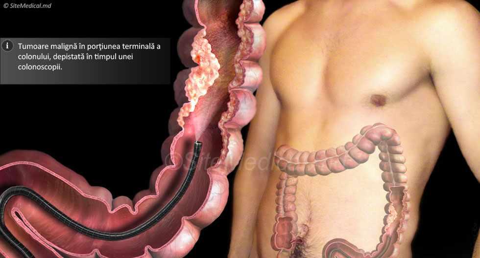 cancerul de colon stadiul 4