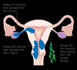 cancerul de endometru