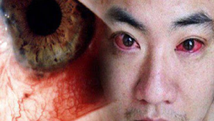 cancerul de ochi)