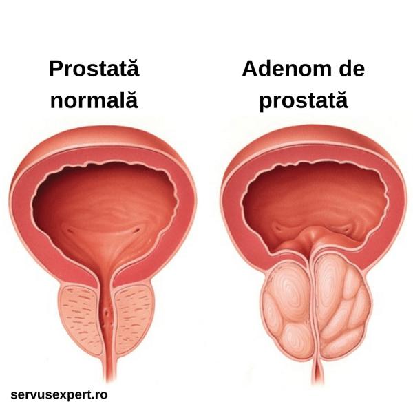 cancerul prostata simptome)