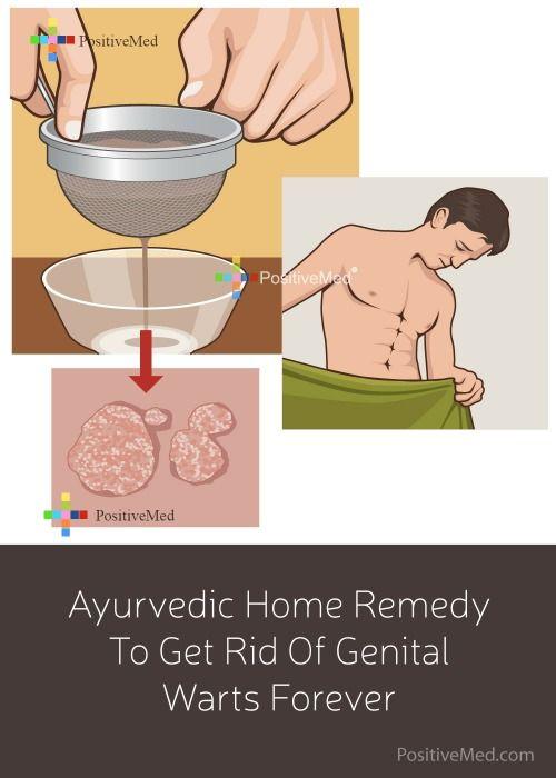 hpv wart remedy)