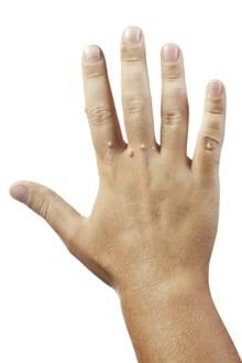 ce nu se poate mânca cu negi negi pe degetele de la mana
