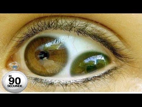 paraziți care trăiesc în tratamentul ochilor umani