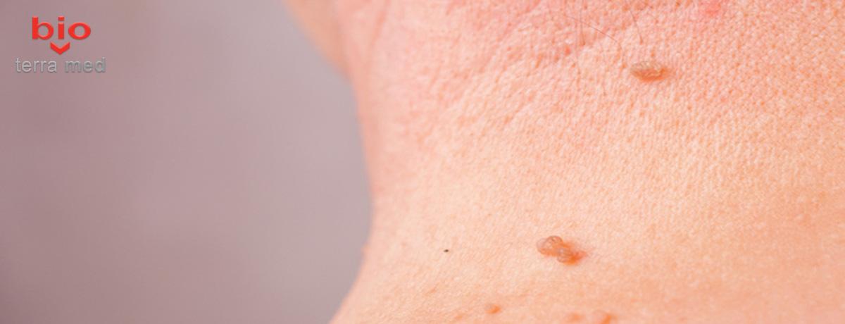 cicatrice după îndepărtarea papilomului
