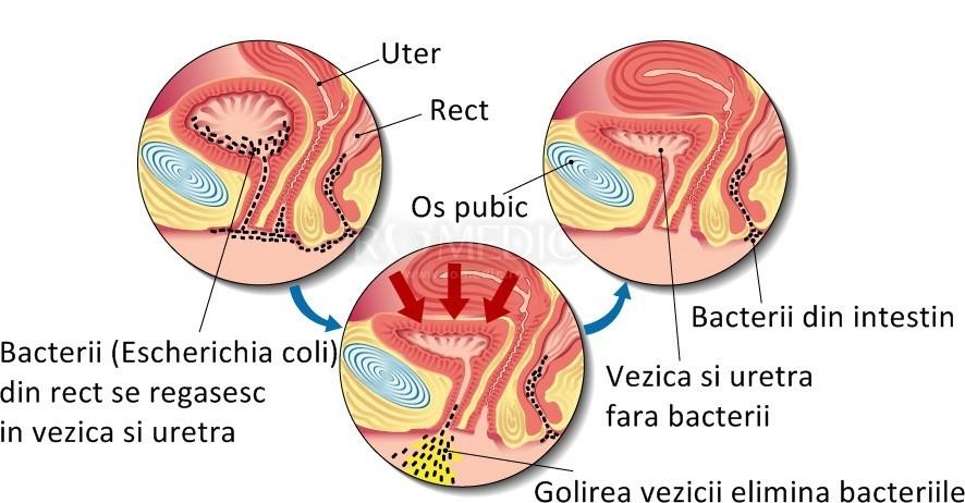 Excizie condiloame uretrale - Dr. Marcel Rad
