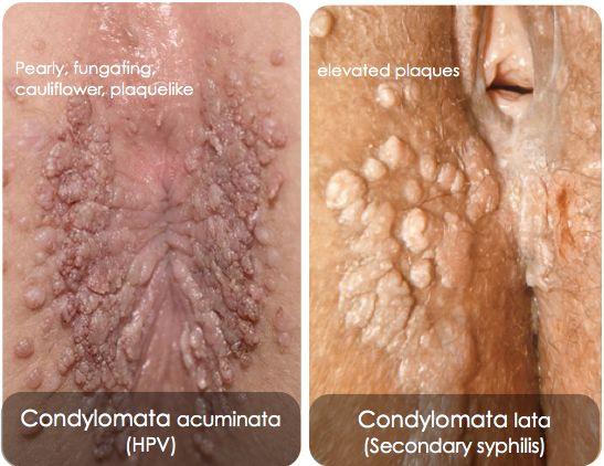 condyloma acuminata la gi