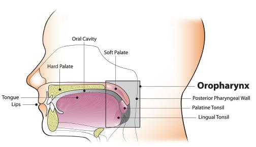 head and neck cancer due to hpv)