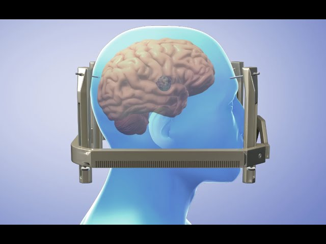 radiochirurgia condilomului în