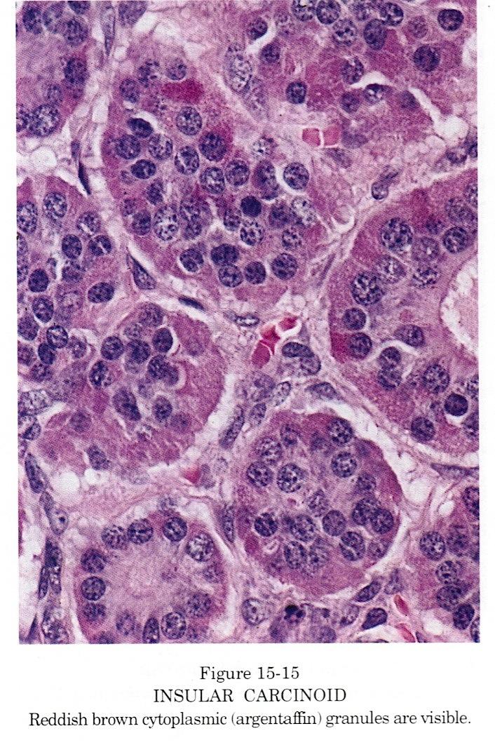 neuroendocrine cancer ovarian