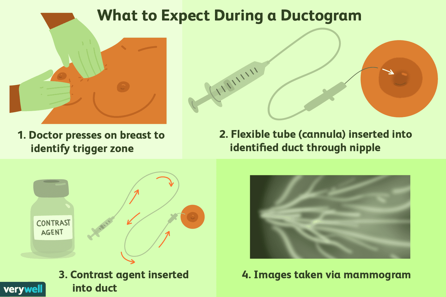 Intraductal papilloma duct ectasia - info-tecuci.ro - Duct papilloma microdochectomy