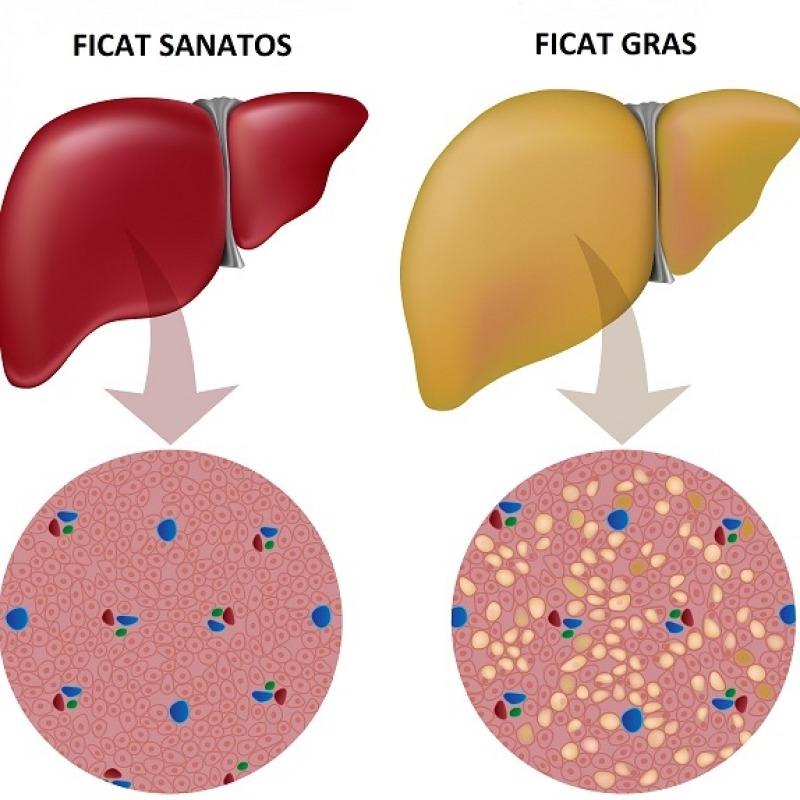 retete regim alimentar pentru ficat