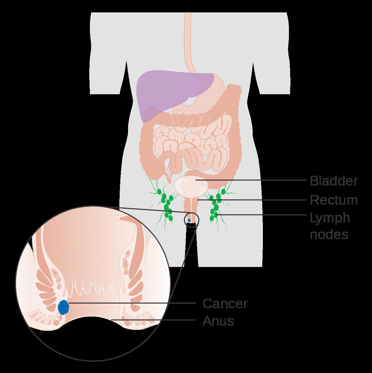 rectal cancer lump)