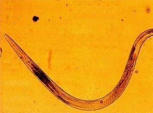 dacă buricul doare, acesta poate fi cauza viermilor?