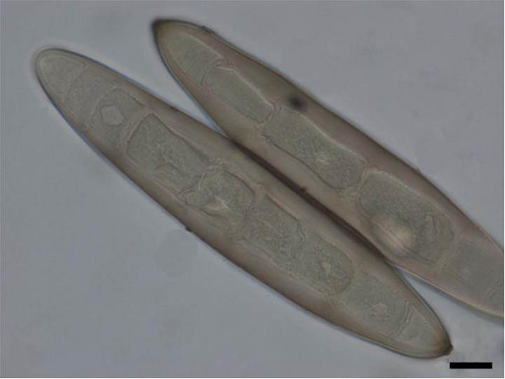 Taxonomia de helminthosporium turcicum - FITOPATOLOGIE-AGRONOMIE