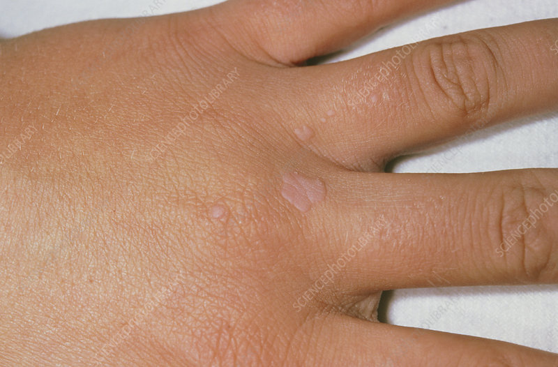 hpv virus warts hands)