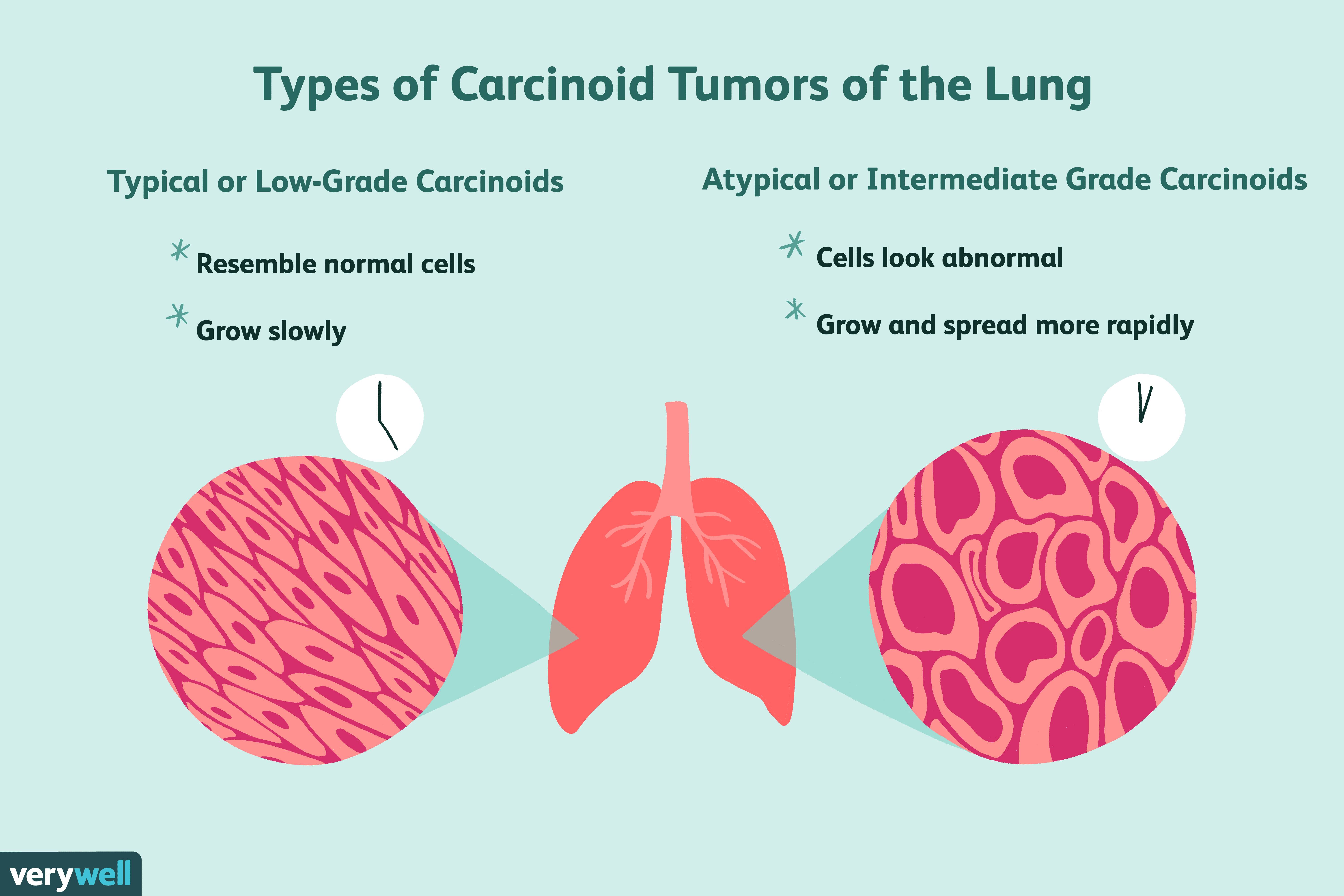neuroendocrine cancer lung small cell curatare sange fares