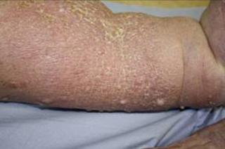 lymphedema papillomas treatment