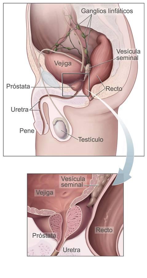 cancer de prostata que organos afecta)