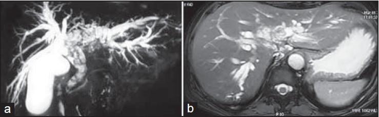 multiple biliary papillomatosis