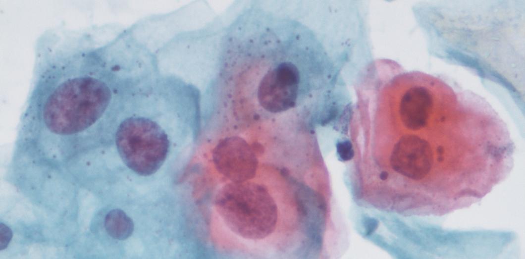 l papillomavirus)