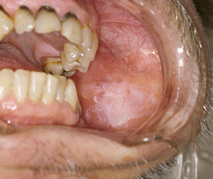 Papilloma dental definition. Define papilloma dentistry.