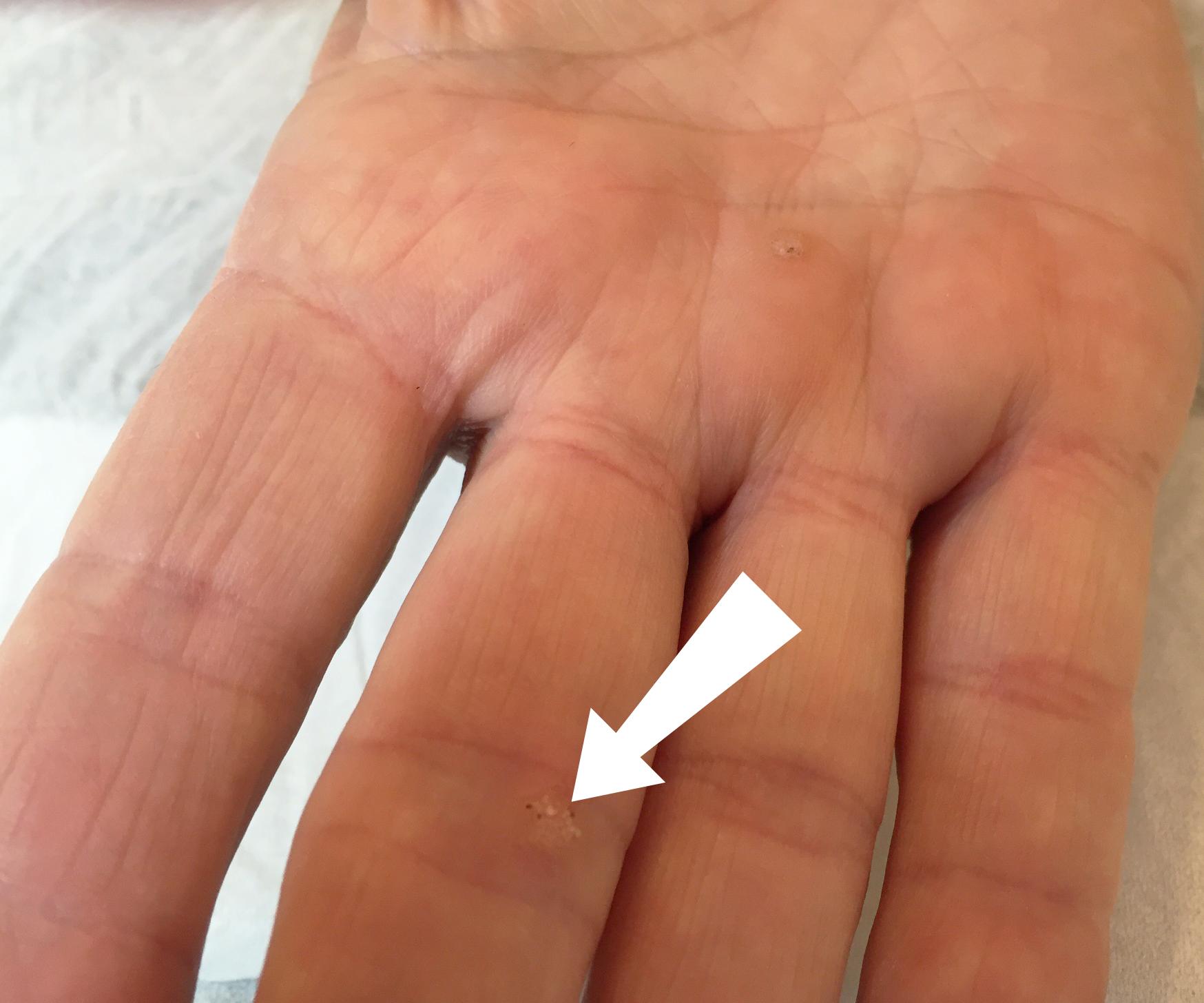 Warts on skin during pregnancy. Detoxifiere efecte secundare