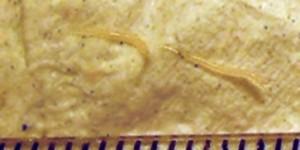 enterobius vermicularis objawy clinică de eliminare a paraziților