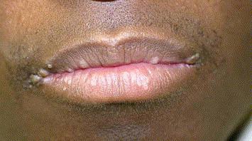 hpv wart on lip