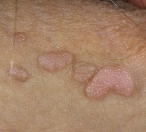 Papilloma lezyon nedir.