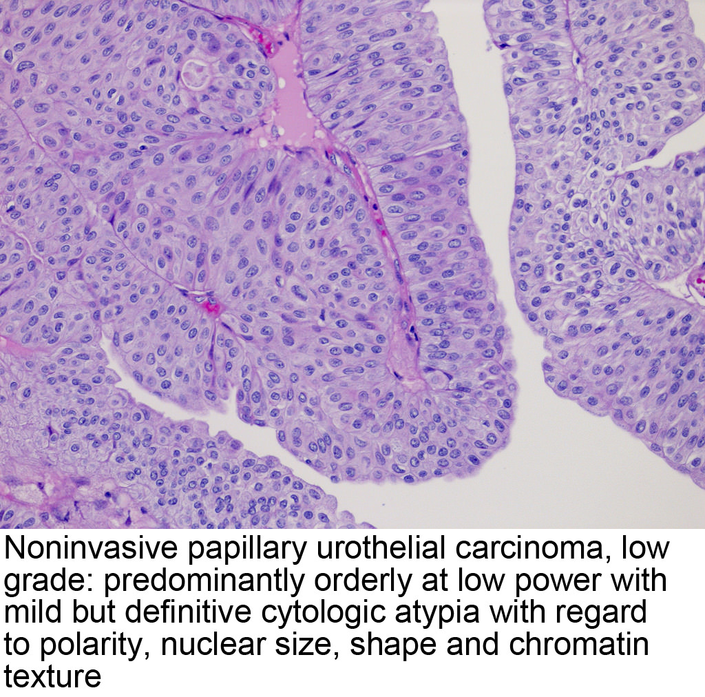 papillary urothelial bladder cancer)