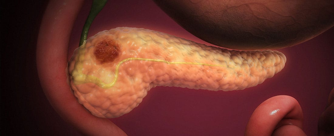 cancerul pancreatic cauze)