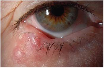 HPV (Human Papilloma Virus) Papilloma nevus - Papilloma nevus