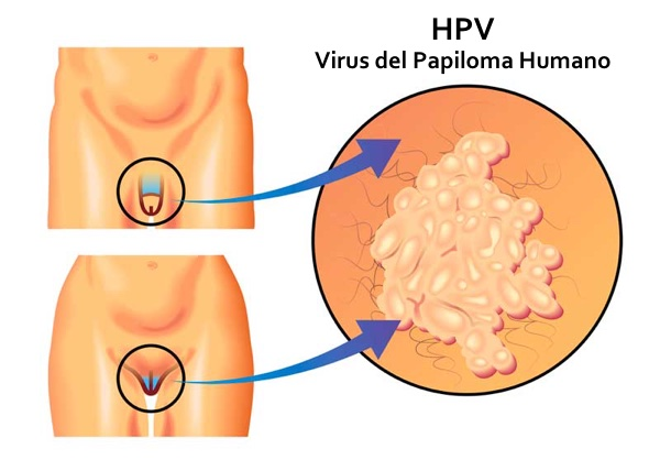 Papiloma y cancer es lo mismo - Traducere