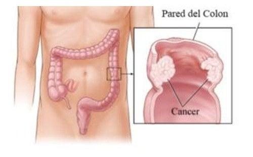 De ce alimente viermii se tem, Limbricii – paraziti intestinali