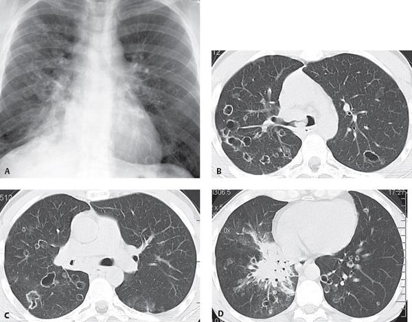 papilloma on x ray
