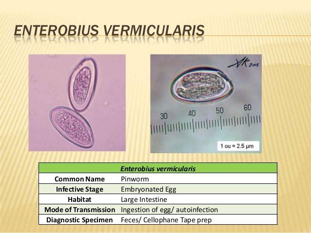 enterobius vermicularis diagnosis)