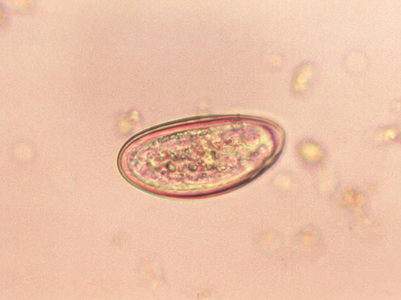 enterobius vermicularis nhg