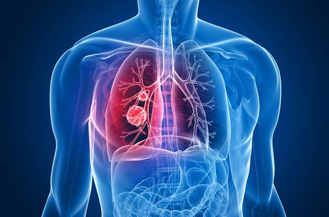 simptome cancer febra