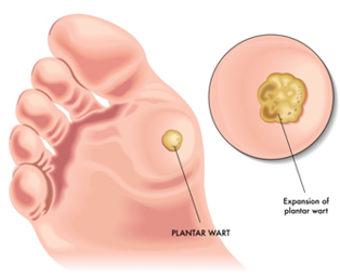 wart foot bottom hpv causes sore throat