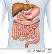 Cancer colorectal femme, metastatic - Traducere în franceză - exemple în română | Reverso Context