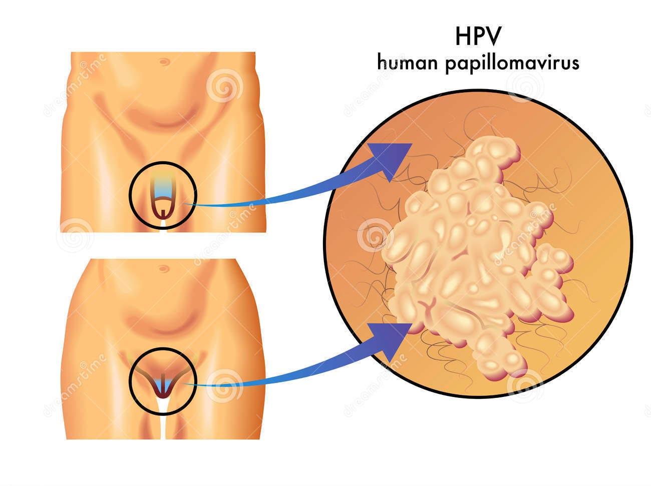 sintomi papilloma nell uomo