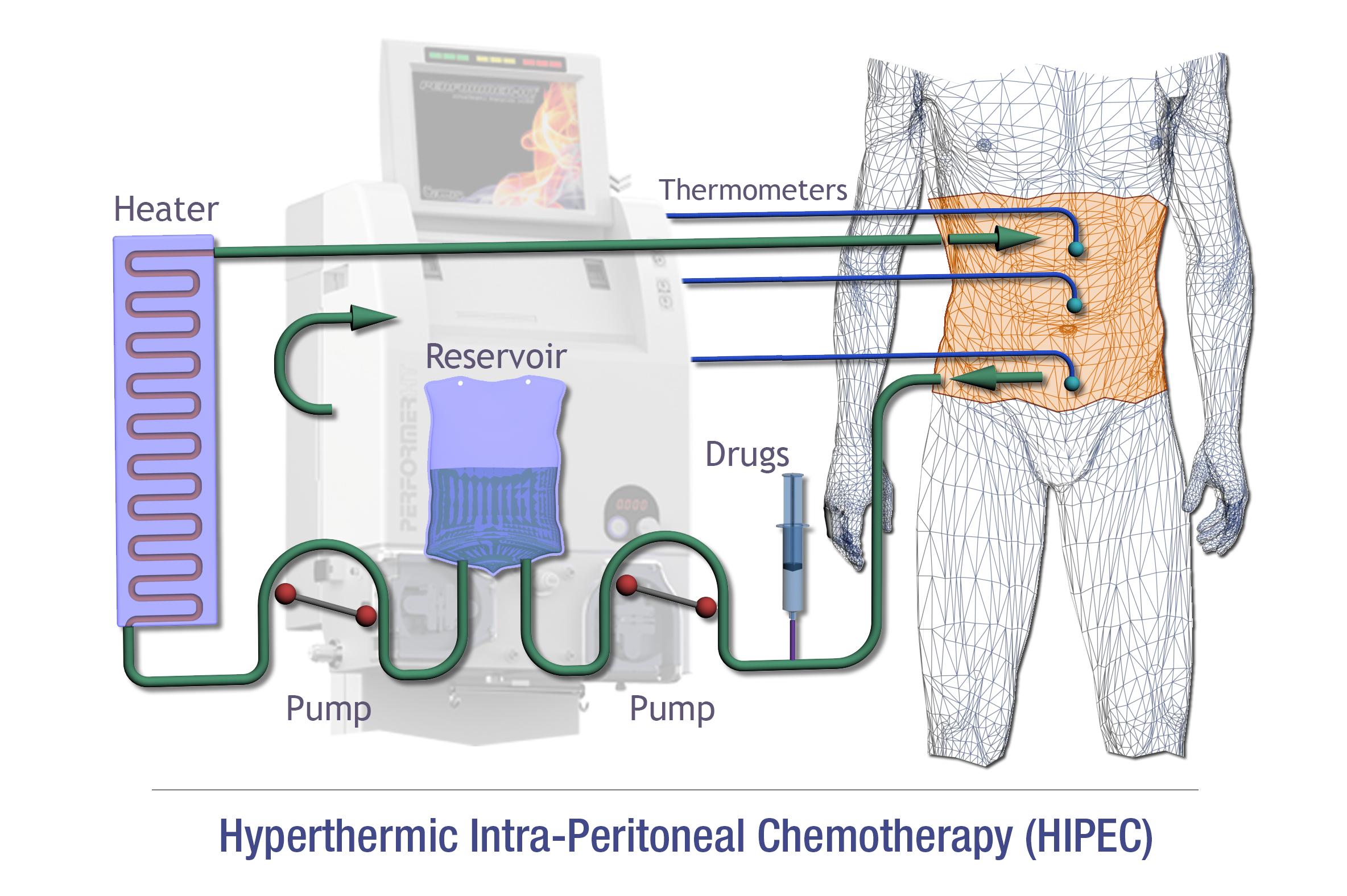 cancer peritoneal hipec