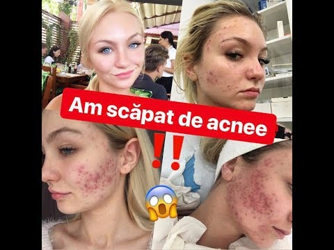 tratamentul acneei viermilor