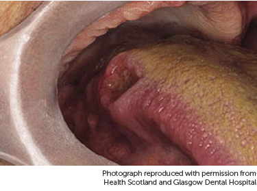 hpv tongue nhs