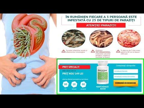 paraziți asupra simptomelor și tratamentului capului uman