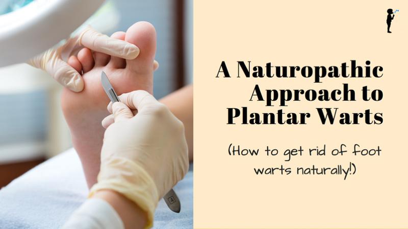 foot warts natural treatment preparate pentru helminți și paraziți