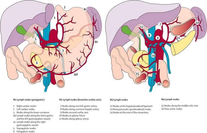 gastric cancer usmle