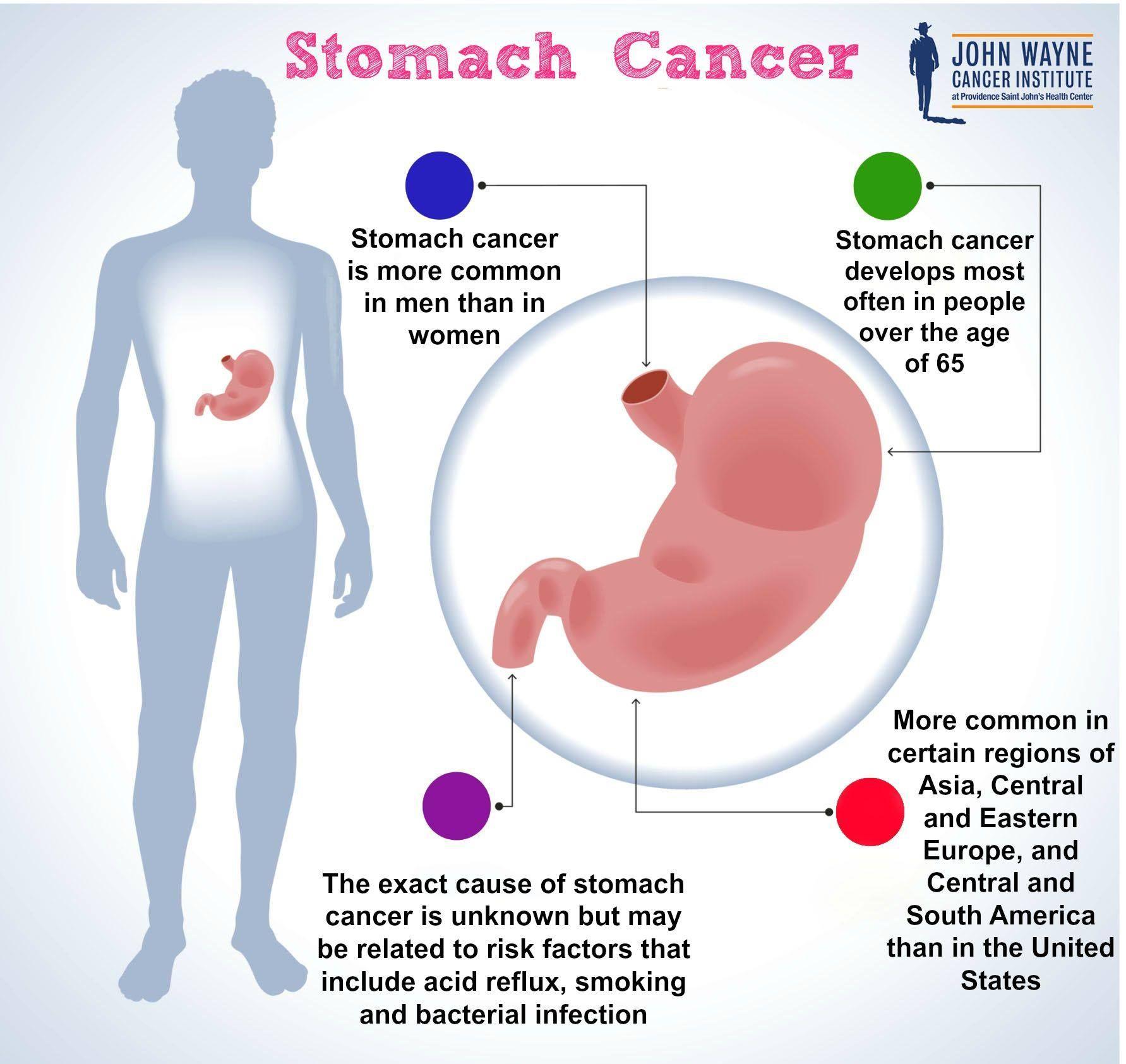 VSH crescut: cauze, intrebari, raspunsuri, Gastric cancer vsg