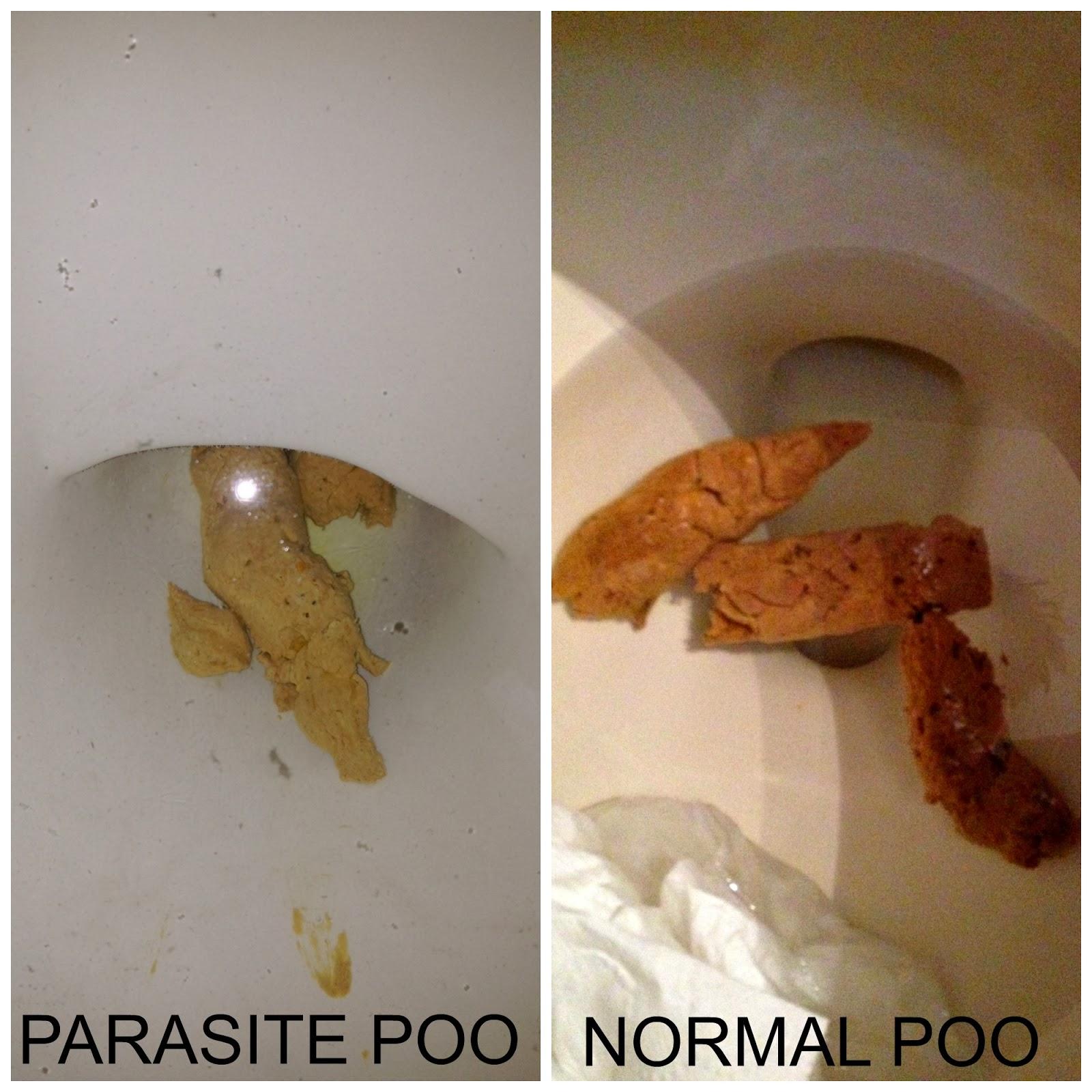 giardia poop)